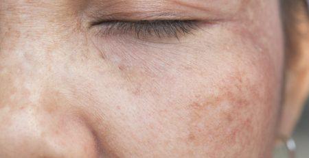 le macchie scure della pelle